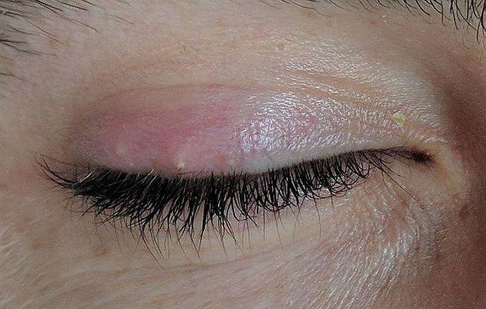 Šta uraditi kada se formira čmičak na oku?