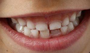 Zašto stalni zubi ne mogu ponovo da izrastu