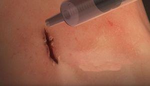 VIDEO: Napravljen lepak koji zatvara rane za minut