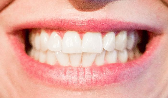 Obeležavanje Nedelje zdravih zuba u utorak u Univeru na Spensu