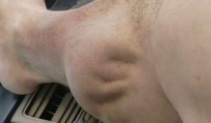 VIDEO: Snimak grča mišića postao hit na društvenim mrežama