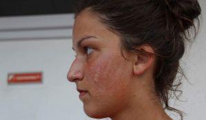 FOTO: Dobila šamar jer se radovala pobedi