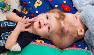 VIDEO: Razdvojeni sijamski blizanci spojeni glavama