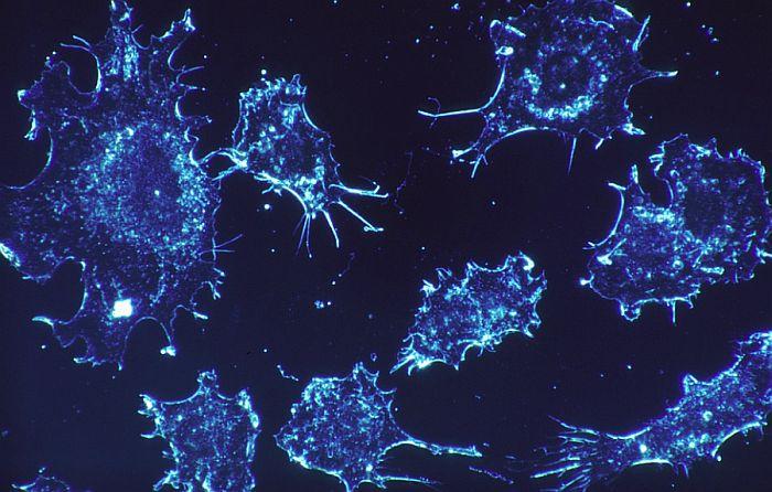 Studija: Mnoge žene mogu da preskoče hemoterapiju u lečenju raka