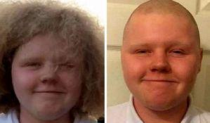 Dečaku zabranjeno da ide u školu jer se ošišao u dobrotvorne svrhe