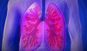 Na vidiku nove metode u lečenju raka pluća