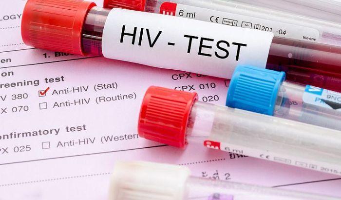 Vakcina protiv HIV daje rezultate, počela testiranja na majmunima