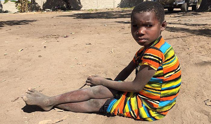 Za dva dana više od 100 osoba umrlo od gladi u Somaliji