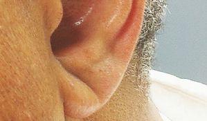 Ako vaše uši imaju ovaj detalj, pazite se srčanog udara