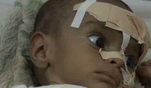 Od gladi svakog dana u Jemenu umre 130 dece