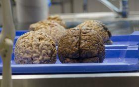 Mozak radi još najmanje deset minuta nakon smrti pacijenta