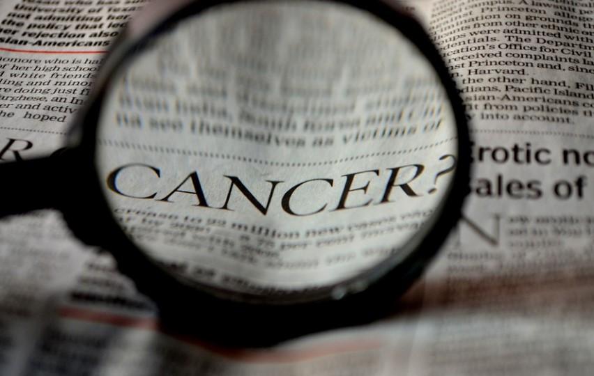 Sajber nož stiže u martu, zračiće tumore u celom telu