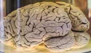 Ljudski mozak se smežurava usled starenja