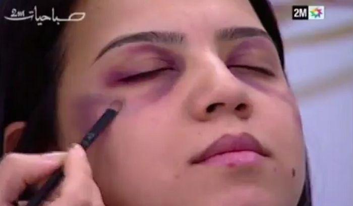 VIDEO: Državna televizija pokazala ženama kako da prikriju porodično nasilje šminkom