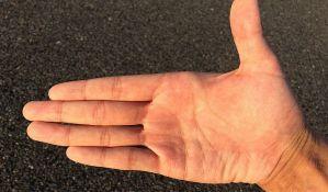 Zašto imamo linije na dlanovima?