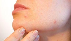 Za 10 godina izgubimo 15 odsto kolagena: Kako protiv starenja kože i zglobova?