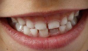 VIDEO: Dečaku stomatolozi izvadili 526 zuba