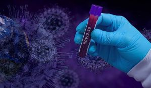 Korona zaraza - potraga za lekom ili za profitom