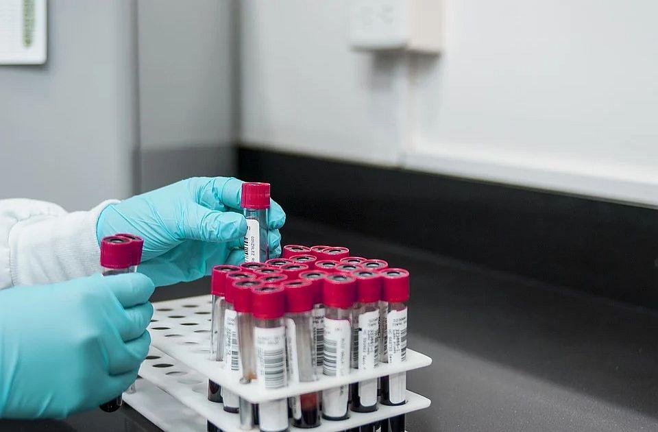Britanija pokreće testiranje koje bi moglo da pomogne u ranom otkrivanju karcinoma