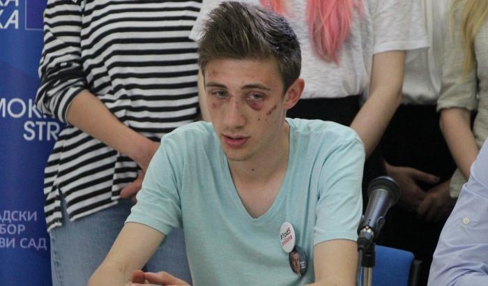 Pretučeni student iz Novog Sada: Ne znam ko me je napao, ne osećam se sigurno u svom gradu