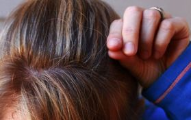 Objašnjeno zašto kosa sedi od stresa