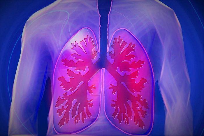 Pluća posle korone gora od pluća pušača