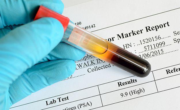 Na šta ukazuju povišeni tumorski markeri?