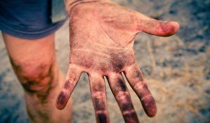 Naučnici napravili veštačku kožu koja menja boju