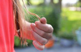Studija pokazala: Četvrtini bivših kovid pacijenata opada kosa
