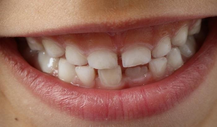 Patentira se novi način da zubi izrastu iz matičnih ćelija
