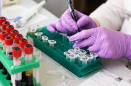 Ruski naučnici pripremaju biočip za testiranje na kovid