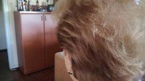 """Korona virus i opadanje kose: """"Samo da ne oćelavim i ne nosim periku"""