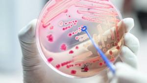 Smrt, medicina i bolnice: Skoro svaka peta smrt u svetu je posledica sepse