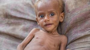 Kriza u Jemenu: 85.000 dece umrlo od gladi