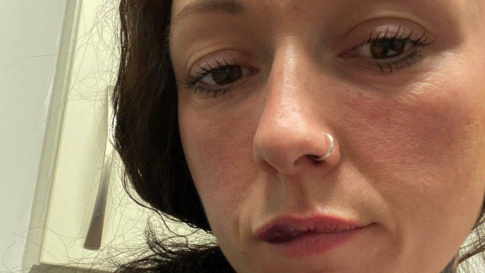Zdravlje i mladi: U Engleskoj zabranjeno ubrizgavanje botoksa i filera za usne mlađima od 18