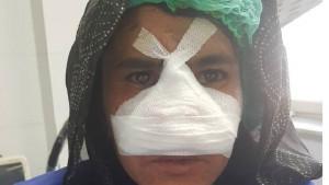 Avganistan, žene i porodično nasilje: Zarki je muž odsekao nos, a hirurg je besplatno operisao
