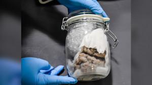 Carinici zaplenili ljudski mozak u tegli