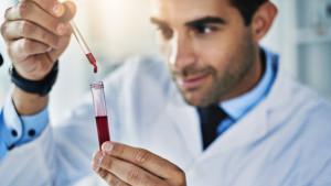 Test krvi koji