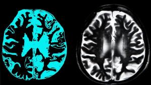 Alchajmerova bolest: Američka kompanija tvrdi da ima prvi lek koji može da uspori oboljenje